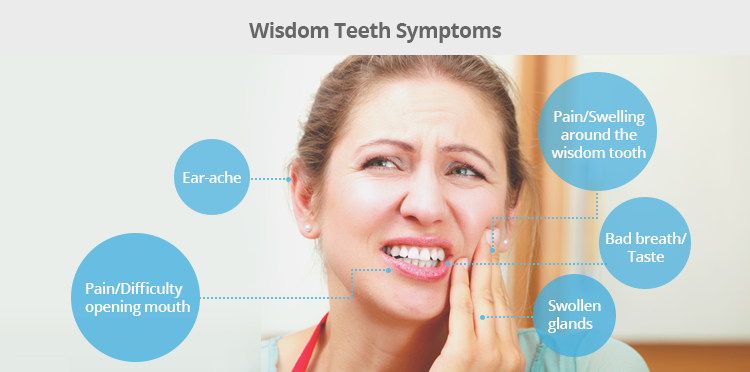 "Why Do We Call Them ""wisdom teeth""?"